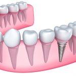 rysunek implantu zęba